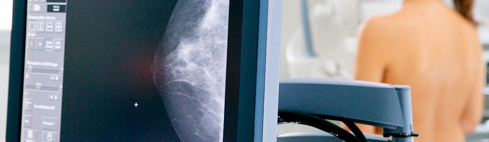 radiologia-mamografia