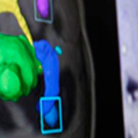Pós Dosimetrista em Radioterapia